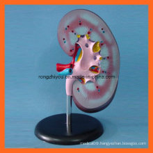 Popular Medical Anatomical Teaching Kidney Model